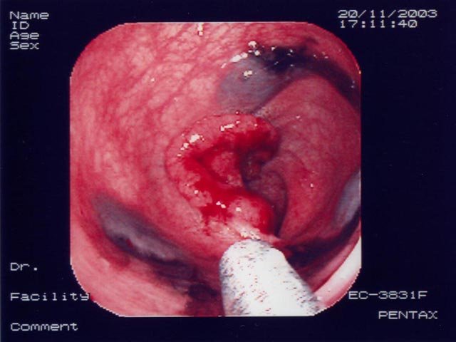 Laparoscopic Colorectal Surgery Photos and Movies